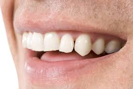 What sort of dentist do I need?